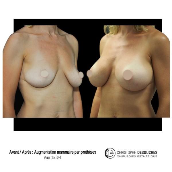 Augmentation mammaire par prothese - vue de 3/4