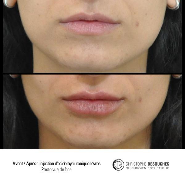 Augmentation des lèvres par injection d'Acide Hyaluronique : avant / après