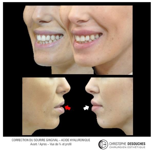 Correction du sourire gingival ou