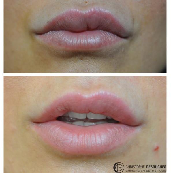 Hyaluronidase + Réinjection acide hyaluronique au niveau des lèvres