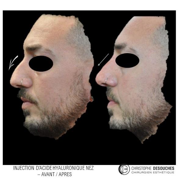 Injection d'acide hyaluronique pour harmoniser le nez