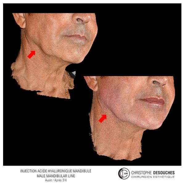 Injection d'acide hyaluronique mandibule pour homme