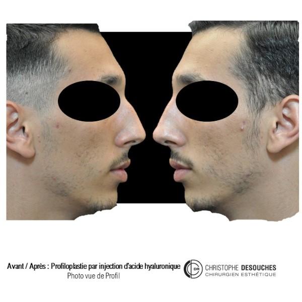 Profiloplastie par injection d'acide hyaluronique dans le nez