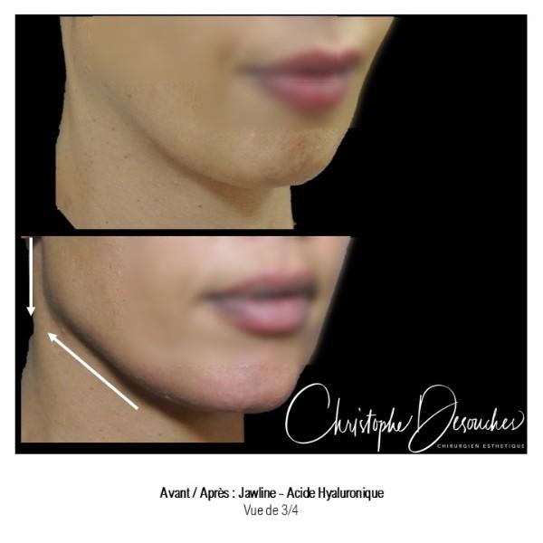 Jawline contouring ou comment redessiner la mâchoire grâce à l'acide hyaluronique