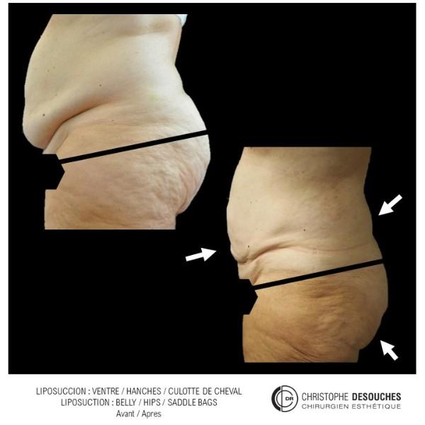 Liposuccion de l'abdomen, des hanches et de la culotte de cheval