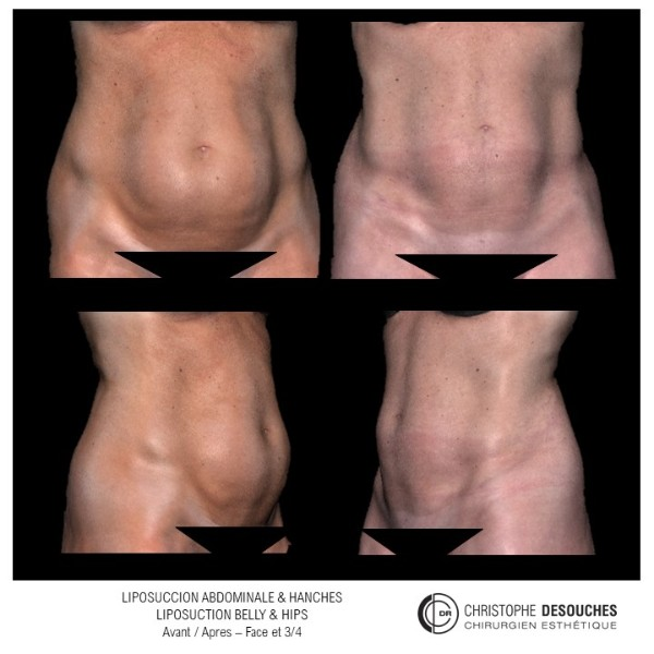 Liposuccion de l'abdomen et des hanches