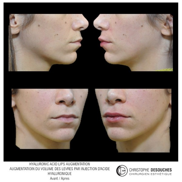 Hyaluronic acid lips augmentation - Augmentation des lèvres
