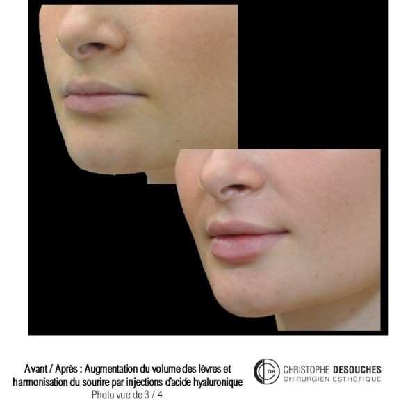 Repulpler et redessiner les lèvres grâce à l'acide hyaluronique