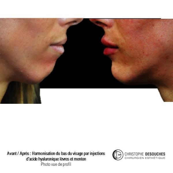 Médicale profiloplastie : Augmentation des lèvres et du menton
