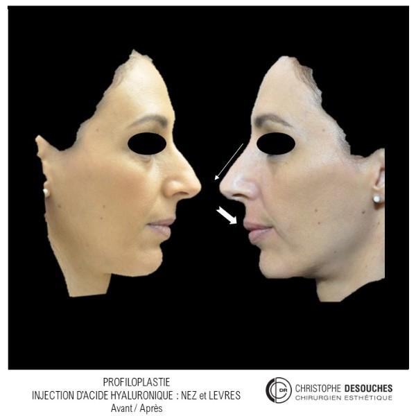 Profiloplastie l' art d'harmoniser le visage par injection d'acide hyaluronique