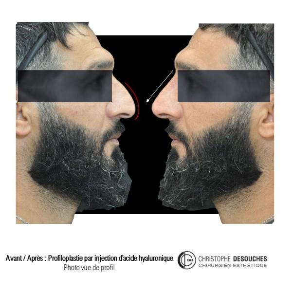 Médicale rhinoplastie : injection d'acide hyaluronique au niveau du nez