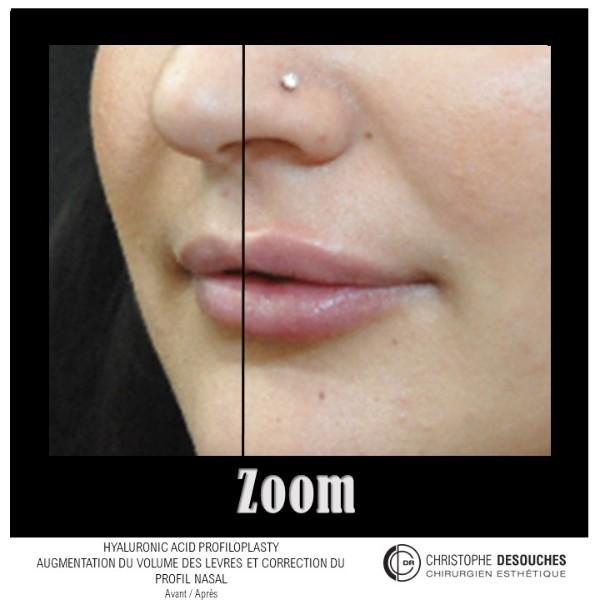 Augmentation du volume des lèvres par injection d'acide hyaluronique