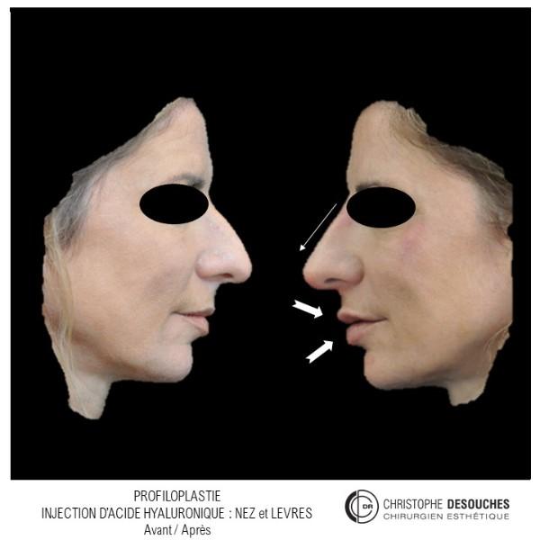 Harmonisation du profil ou profiloplastie par injection d'acide hyaluronique