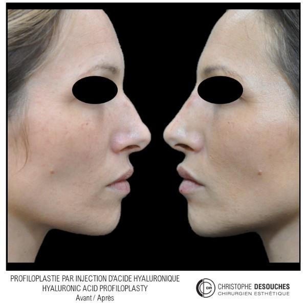 Embellir le profil sans chirurgie - la Profiloplastie médicale