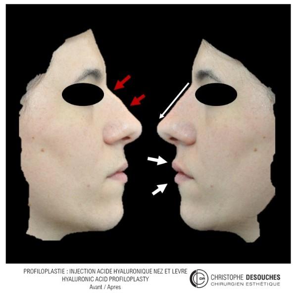 La Profiloplastie médicale : l'art d'harmoniser le profil, sans chirurgie