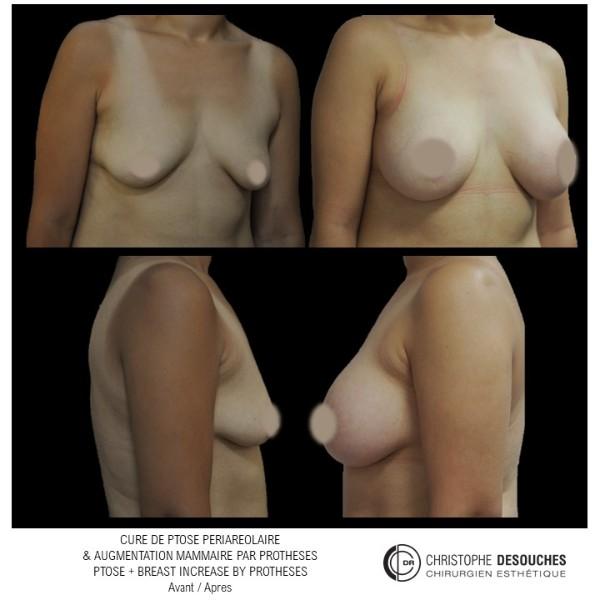 Augmentation mammaire par prothèse et cure de ptôse périareollaire
