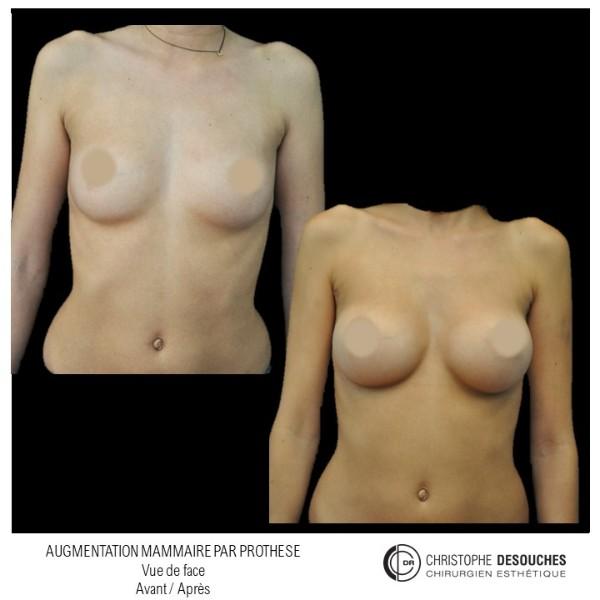 Augmentation mammaire par prothese