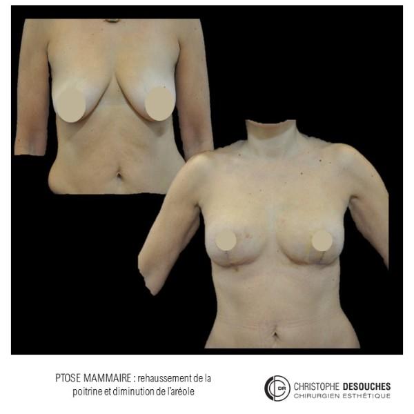 Ptose Mammaire et lipofilling