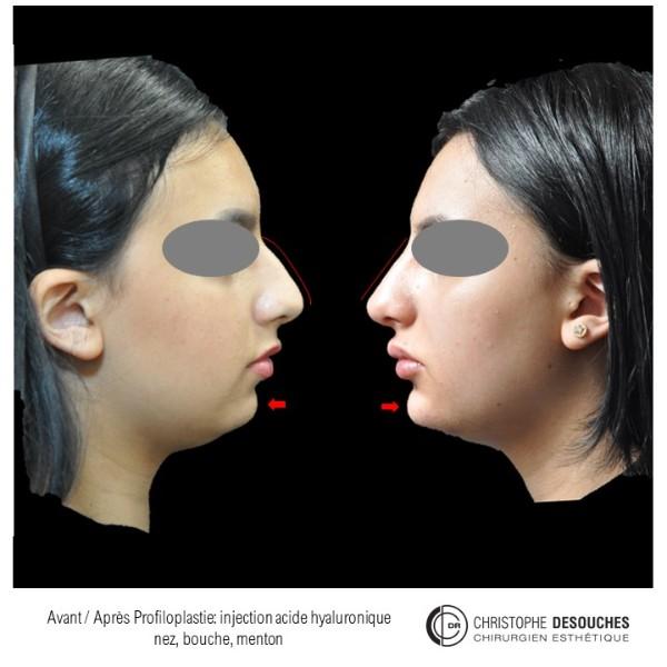 Profiloplastie par injection d'acide hyaluronique